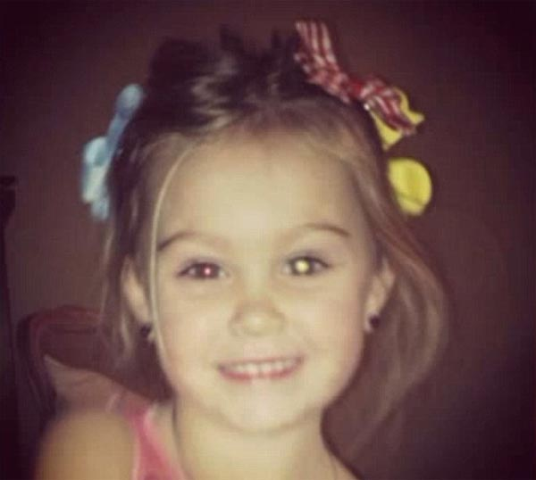 Rylee eye saved thanks to Facebook friends