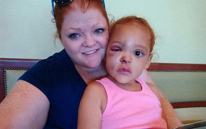 5 Yr Old AvaLynn beaten at school but school denies